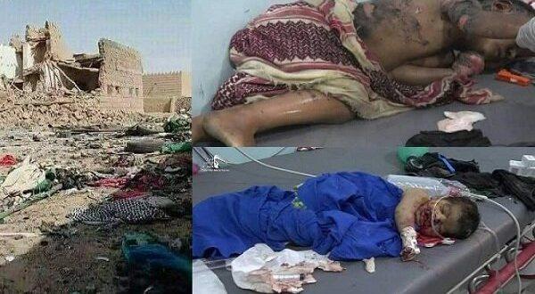 ۴۰۰ هزار کودک زیر ۵ سال یمنی در آستانه مرگ از گرسنگی